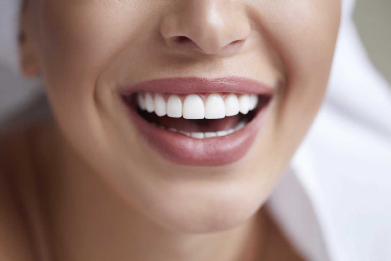 Laser Teeth Whitening – What You Needed to have to Know