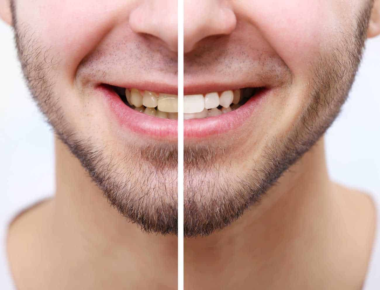 Laser Teeth Whitening – How Effective is Laser Teeth Whitening?