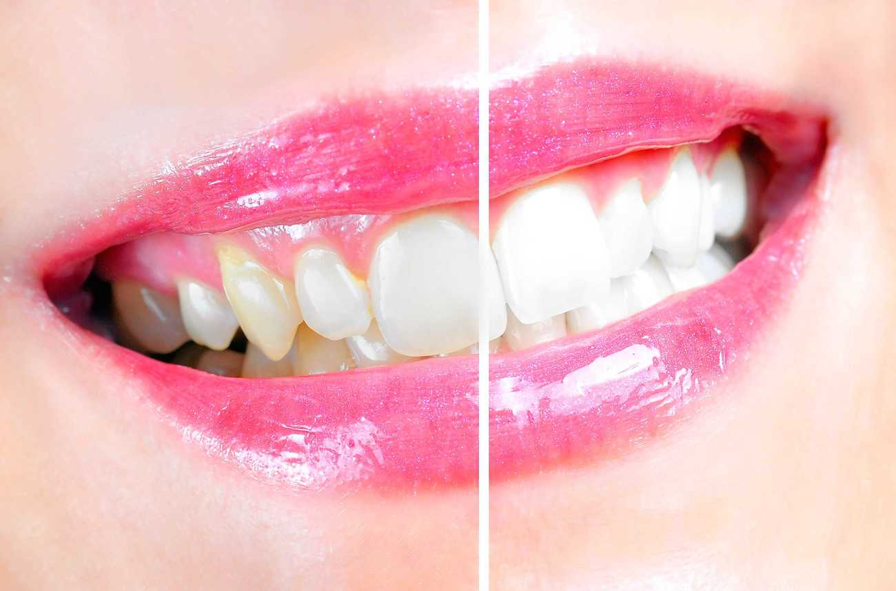 Specialist Teeth Whitening Which Technique Is Actually Greatest for You?