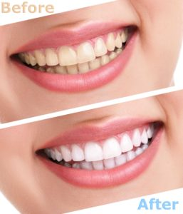 Top 10 Teeth Whitening Myths Exposed in Loughborough